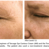 Biopelle Tensage Eye Contour Cream (SCA 8 Biorepair Index)