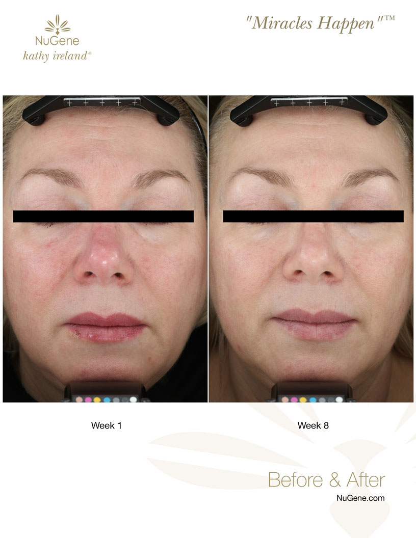 before-after-princeton-study-nugene-serums