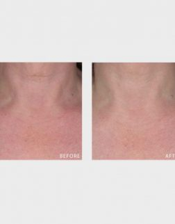 MyBody Neck-Cessity before and after