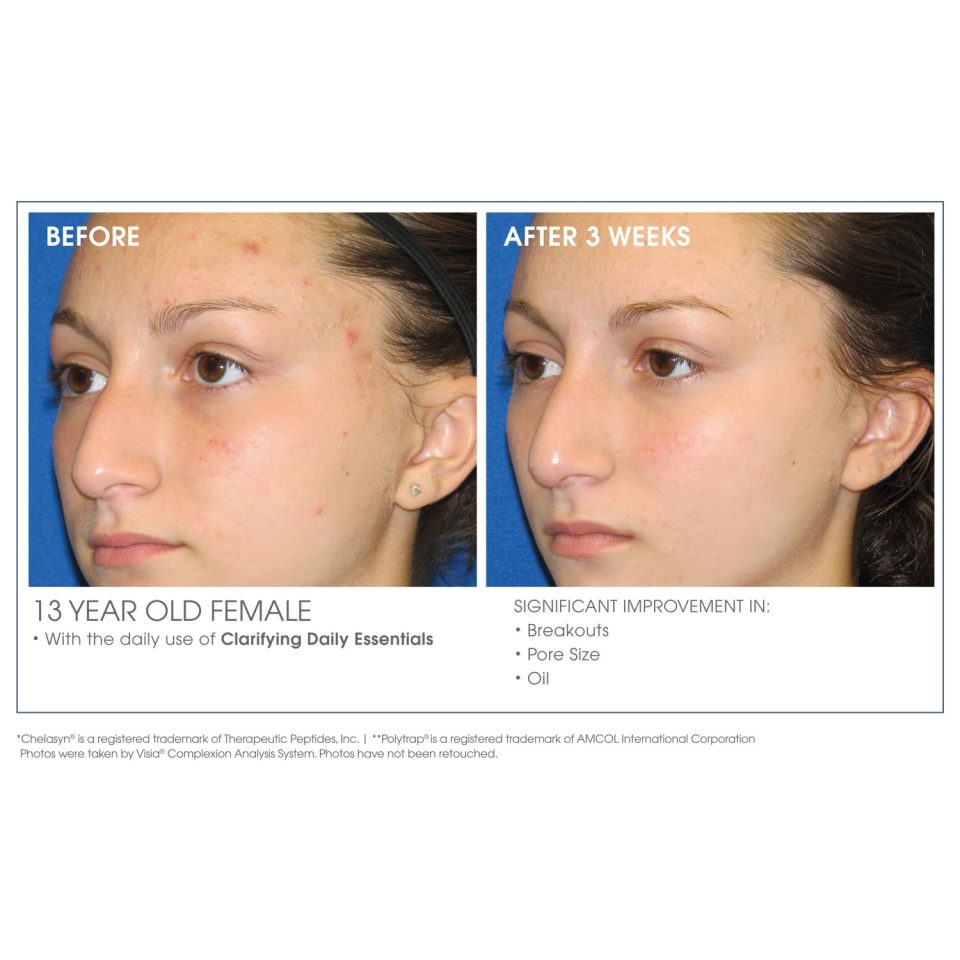 let-me-clarify-before-after