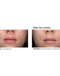 23375-acne-gel-bna-1_2