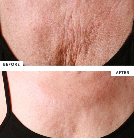 silcskin_decollette_pad_before-after