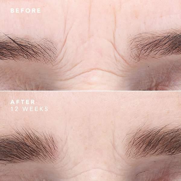 EGF_Serum_Wrinkle_Treatment_B_A_600x600