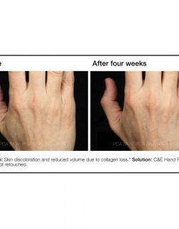 PCA SKIN C&E Hand Renewal