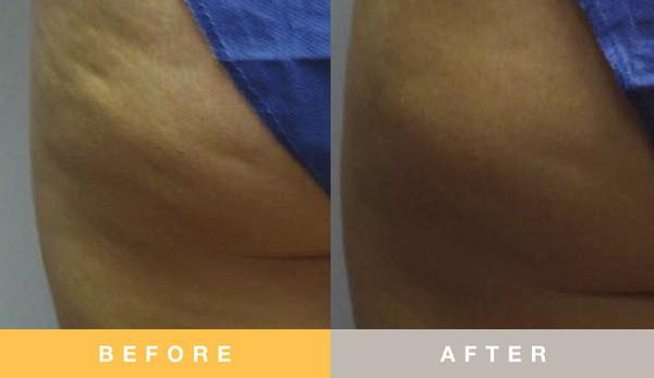 Prescribed Solutions Cellulite Before and After